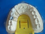 Metal Onlay&Inlay hecho en el laboratorio dental de China