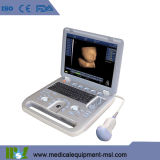 Pseudo scanner portatile Mslcu18A di ultrasuono di Doppler di colore 4D