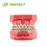 Orthodontisches Bracket One Piece Bracket mit CER