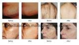 Il laser caldo del diodo di larghezza di impulso di vendita 400ms 808nm per tutta la pelle digita la rimozione dei capelli