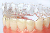 Aligner libero/Invisalign/parentesi graffe libere/parentesi graffe di Invisable