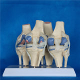 Modelo humano do esqueleto educacional médico do joelho humano (R020904)