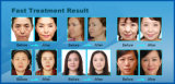 China Bruch-HF u. thermische HF-Anti-Aging Gesichts-Behandlung
