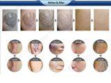 apparatuur van de Schoonheid van het Vermageringsdieet van Liposuction van de Laser van 1064nm de Medische