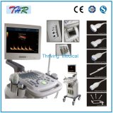 3D Color Doppler Ultrasound Machine