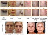 Macchina di rimozione del tatuaggio del laser della macchina di rimozione dei capelli di sollevamento di fronte di ringiovanimento rf della pelle di IPL Shr
