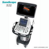 Couleur médicale Doppler Sonoscape S22 du chariot 4D à hôpital