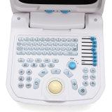 Scanner portatif d'ultrason de Digitals de système médical basé sur PC approuvé de la CE - Martin