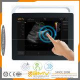 2017new portátil del ordenador portátil de pantalla táctil escáner de cuerpo Ultrasonido (TS60)