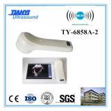 Scanner de vessie portatif / sonde sans fil 4D