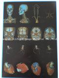 De Film van de Laser van het Huisdier van de Film van de Röntgenstraal van de druk