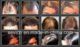 Fibre della cheratina di ispessimento dei capelli delle soluzioni di perdita di capelli del campione libero di Sevich