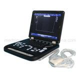 Colorare la macchina avanzata portatile Mslcu11A di ultrasuono di Doppler