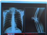 [لوو بريس]! ! [إكس-ري فيلم] طبّيّ زرقاء
