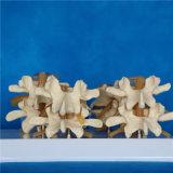 Menschlicher Dorn-Skeleton medizinisches Modell für das Unterrichten (R020701)
