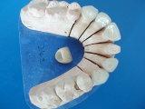 Dentale tutti i parte superiore e ponticello massimi di ceramica dell'imperatrice di e fatti nel laboratorio dentale della Cina