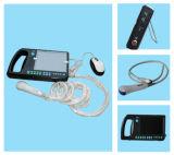 De digitale palm-Slimme Scanner van de Ultrasone klank (CMS600S)