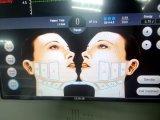 高輝度集中された携帯用超音波のHifuの皮の軽減機械キット