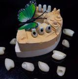 Estribo de encargo del Zirconia del injerto hecho en el laboratorio dental de Minghao