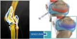 Quickclean uma injeção disparada da junção do ácido hialurónico