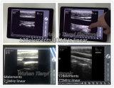Sonde d'ultrason de WiFi d'image noire et blanche 2D pour le téléphone de main