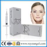 Enchimento cutâneo facial da injeção do ácido hialurónico de Reyoungel