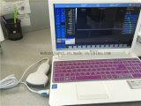 Ultrason portatif de garniture de module de balayage d'ultrason d'USB