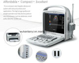 Le scanner d'échographie-Doppler de couleur le meilleur marché de 15 pouces