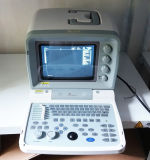 Scanner di ultrasuono di Portbale Digital del Ce (WHY9618F più)