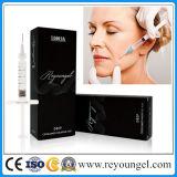 Reyoungel Facial는 Hyaluronic 산 피부 충전물 주입을 이식한다