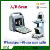 a/B Modus-Berufsaugen-Ophthalmological Ultraschallmaschine