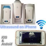 Fácil carreg a ponta de prova sem fio do ultra-som dos telefones móveis para a inspeção da divisão de hospital