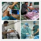 De Scanner van de Sonde van de ultrasone klank met Draadloze Functie