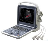 Machine portative de Doppler Ultrasounic de couleur