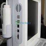 Ysb-V3医学の診断携帯用カラードップラー超音波機械