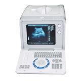 Macchina portatile approvata di Ultrasond del Ce (sulle vendite) - Martin