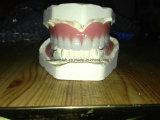 完全なアーチのアクリルの総義歯