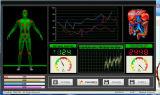 Máquina de teste magnética da saúde do analisador do corpo da ressonância do quantum com terapia Mslhq311L