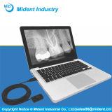 Sensor dental Rvg da raia de X do USB Digital de Ce&FDA EUA