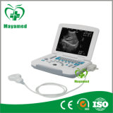 Scanner léger Plein-Digital portatif d'ultrason d'ordinateur portatif de My-A007b
