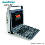 Machine portative médicale d'échographie-Doppler de couleur de Sonoscape S8exp d'hôpital