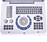 Scanner portatif d'échographie-Doppler de Digitals pour la grossesse