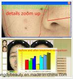 Máquina do teste de pele da face para o tratamento da umidade
