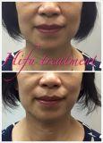 El rejuvenecimiento de la piel de Corea Ulthasound Hifu arruga la cara y la carrocería de Hifu del equipo del salón de belleza de la elevación de cara del retiro que adelgazan precio de la máquina de Hifu