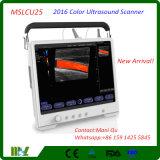 Varredor cheio do ultra-som de 2016 Digitas da cor do écran sensível (MSLCU25)