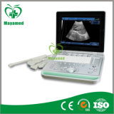 My-A009c Laptop Ultrasound Scanner (ultrasonicblack, das System whiteImaging ist)