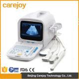 Ce et scanner portatif approuvé d'ultrason d'OIN plein Digital (PC) - Stella