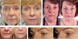 Hifu bewegliche fokussierte Ultraschall-Schönheits-Maschine für die Haut, die das Gesichts-Anheben Hifu festzieht
