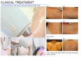 2016 nueva máquina del laser 808nm del diodo para el retiro permanente y sin dolor del pelo