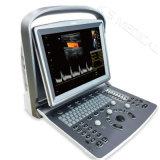 デジタルカラードップラー超音波診断Systemultra携帯用、超現実的、カラードップラー